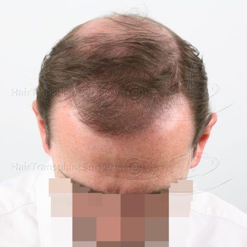 photos 4 puis 7 mois apr s ma greffe de cheveux fue il va falloir couper un peu bien tre. Black Bedroom Furniture Sets. Home Design Ideas