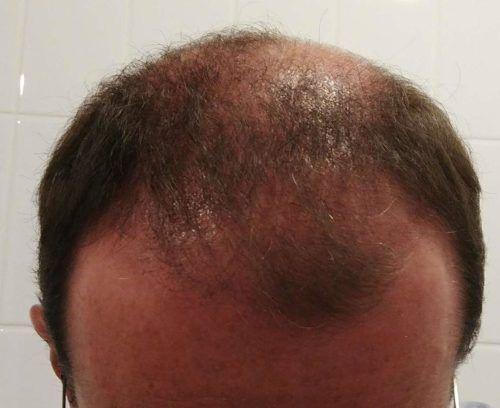 photos 3 mois apr s ma greffe de cheveux fue il va falloir tre patient bien tre et sant. Black Bedroom Furniture Sets. Home Design Ideas