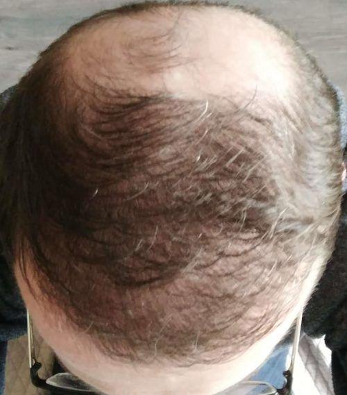 photos 5 mois apr s ma greffe de cheveux fue une nouvelle ligne frontale. Black Bedroom Furniture Sets. Home Design Ideas