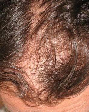 age-perte-cheveux