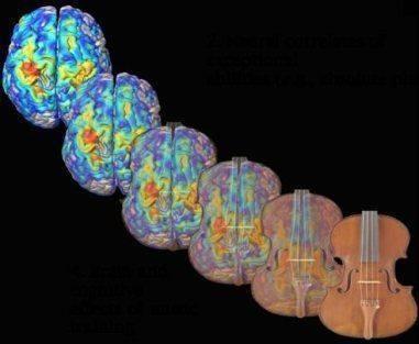 cerveau-musique