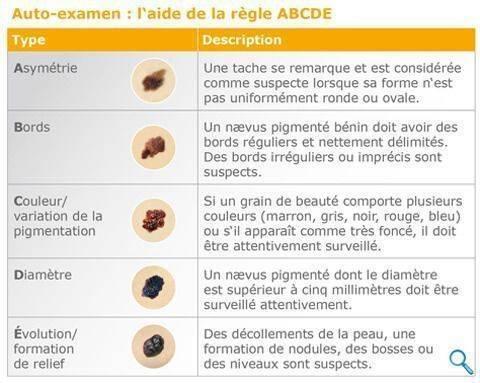 melanome-regle-abcde